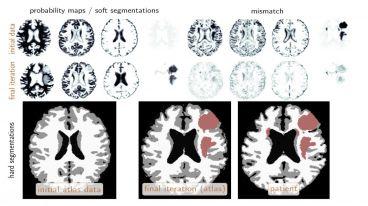 Siêu máy tính có khả năng chẩn đoán u não