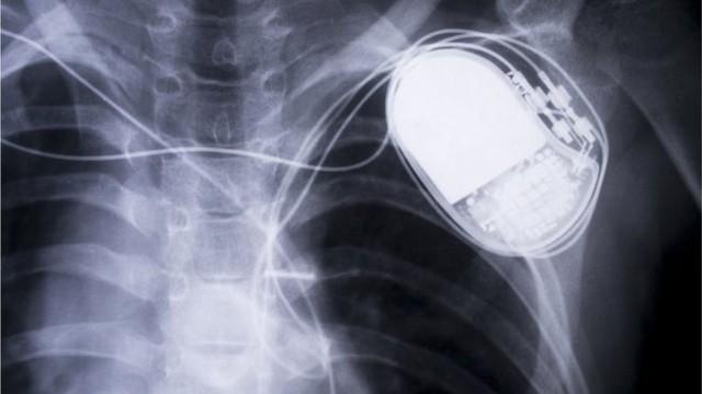 745.000 thiết bị máy điều hòa nhịp tim của Abbott có thể bị hack - Ảnh 1.
