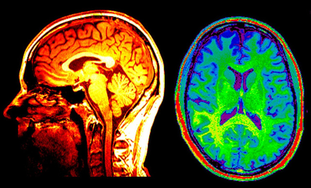 Thuật toán có khả năng nhận diện người đang muốn tự tử - Ảnh 1.