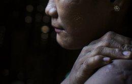 Nghị sĩ Malaysia bị phản đối vì nói vợ 'cấm cửa' chồng là bạo hành